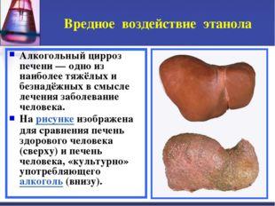 Вредное воздействие этанола Алкогольный цирроз печени — одно из наиболее тяжё