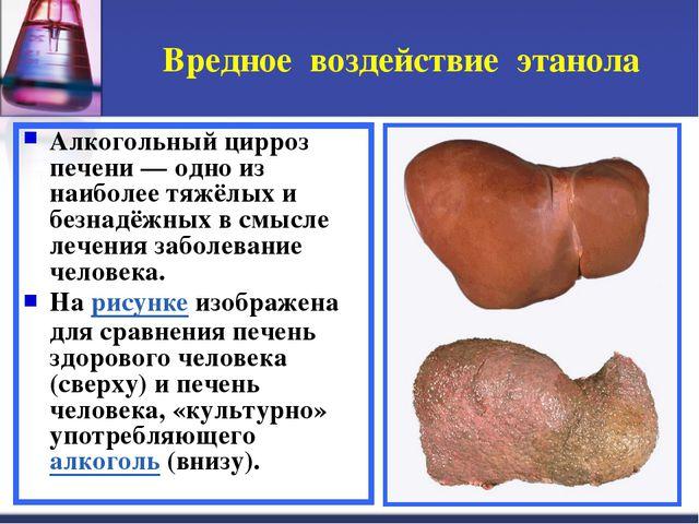 Вредное воздействие этанола Алкогольный цирроз печени — одно из наиболее тяжё...