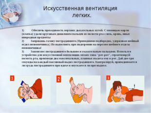 Искусственная вентиляция легких. 1) Обеспечь проходимость верхних дыхательны
