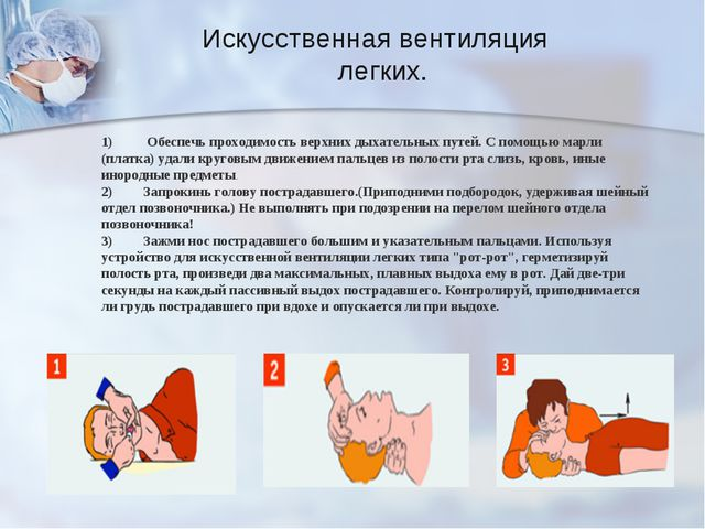 Искусственная вентиляция легких. 1) Обеспечь проходимость верхних дыхательны...