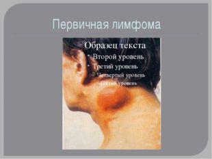 Первичная лимфома