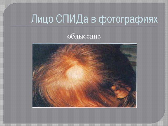 Лицо СПИДа в фотографиях облысение