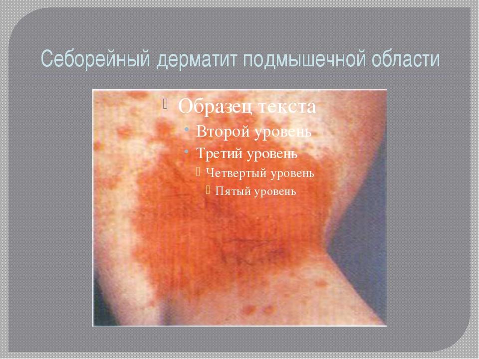 Cеборейный дерматит подмышечной области