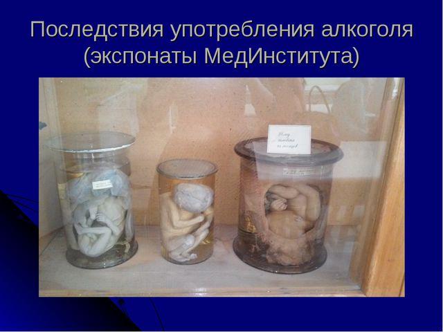 Последствия употребления алкоголя (экспонаты МедИнститута)