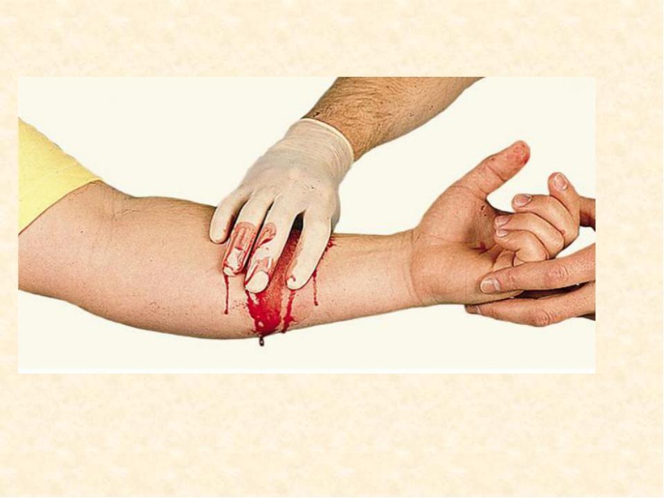 Артериальное кровотечение и венозное картинки