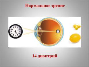 Нормальное зрение 14 диоптрий