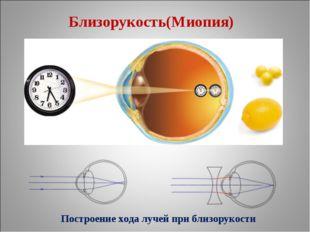 Близорукость(Миопия) Построение хода лучей при близорукости