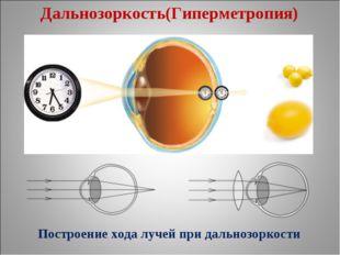 Дальнозоркость(Гиперметропия) Построение хода лучей при дальнозоркости