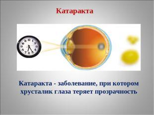 Катаракта - заболевание, при котором хрусталик глаза теряет прозрачность Ката