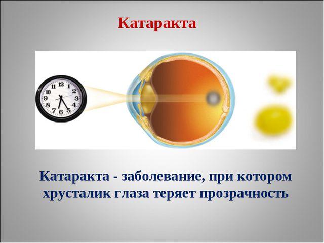 Катаракта - заболевание, при котором хрусталик глаза теряет прозрачность Ката...