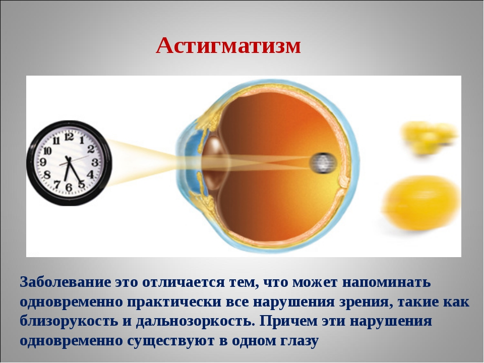 Астигматизм Заболевание это отличается тем, что может напоминать одновременно...