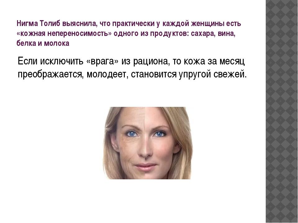 Нигма Толиб выяснила, что практически у каждой женщины есть «кожная неперенос...