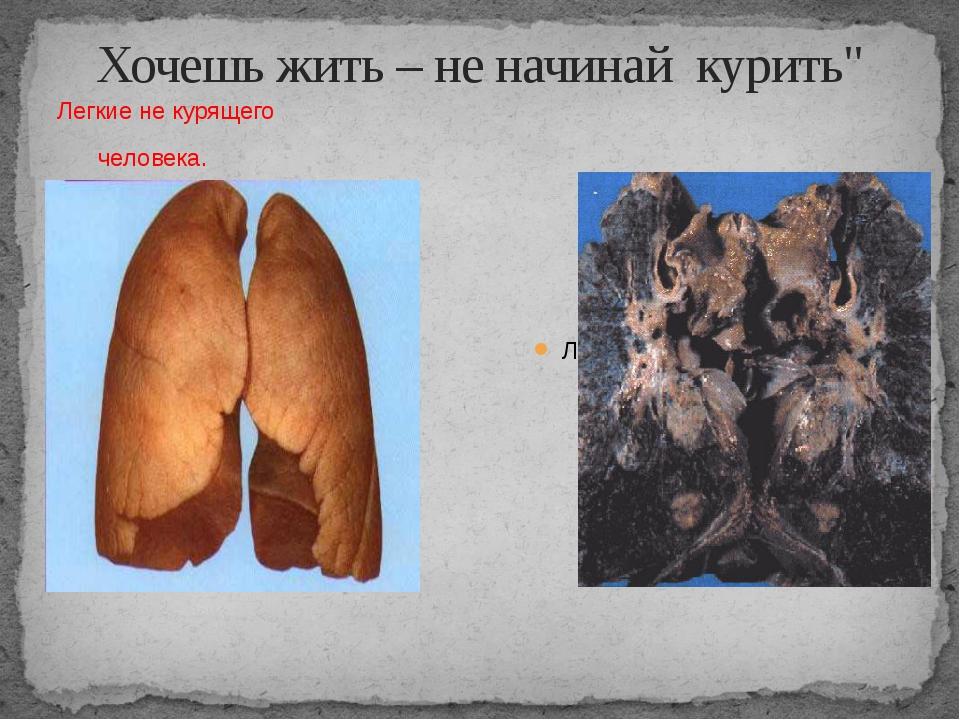 """Хочешь жить – не начинай курить"""" Легкие не курящего человека. Легкие курящего..."""