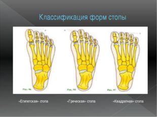 Классификация форм стопы «Греческая» стопа «Египетская» стопа «Квадратная» ст