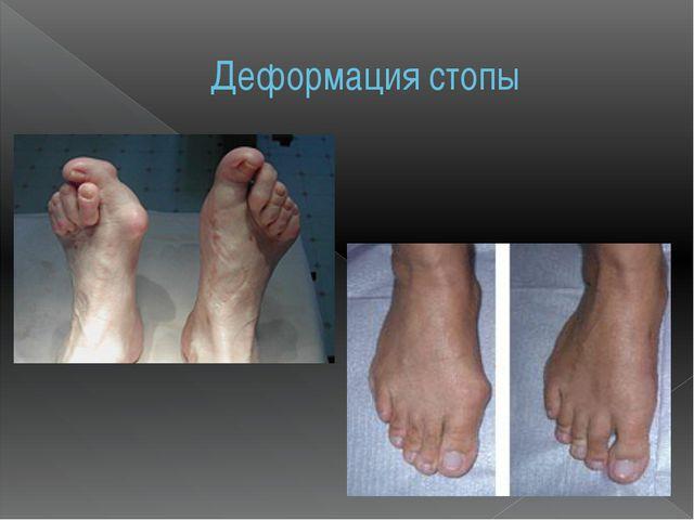 Деформация стопы