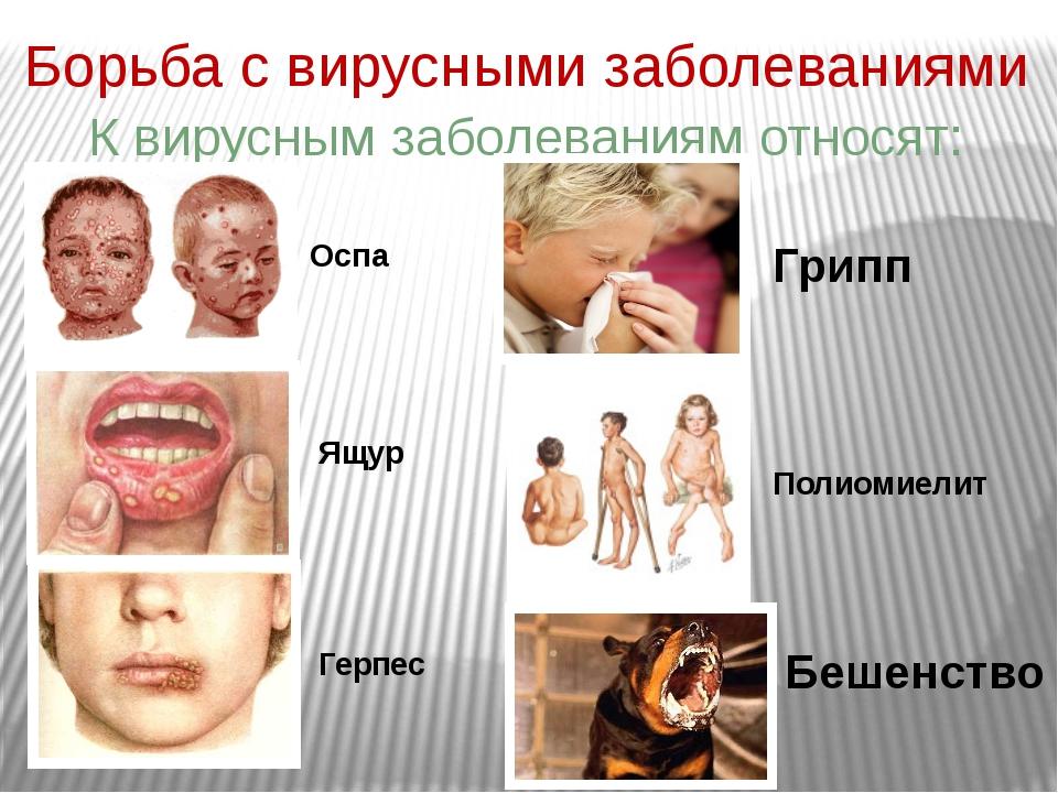 Борьба с вирусными заболеваниями К вирусным заболеваниям относят: Оспа Ящур Г...