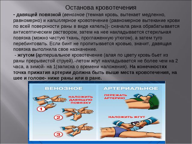 Останова кровотечения - давящей повязкой (венозное (темная кровь, вытекает м...