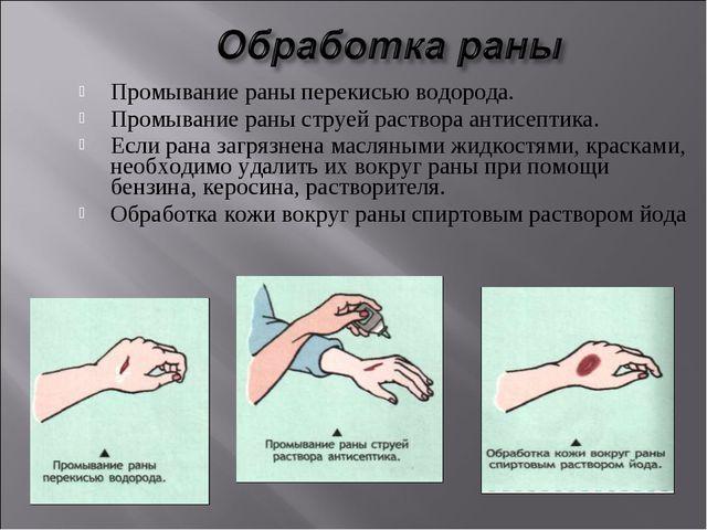 Промывание раны перекисью водорода. Промывание раны струей раствора антисепт...