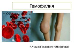 Гемофилия Суставы больного гемофилией