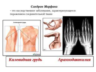 Синдром Марфана - это наследственное заболевание, характеризующееся поражени