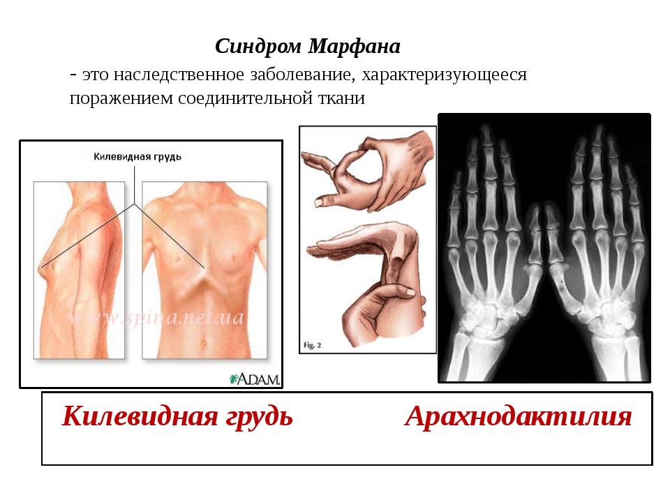 Синдром Марфана - это наследственное заболевание, характеризующееся поражени...