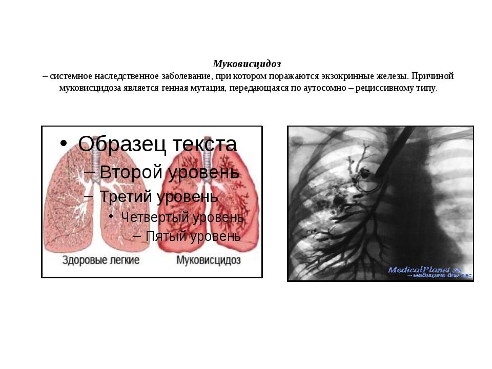 Муковисцидоз – системное наследственное заболевание, при котором поражаются...
