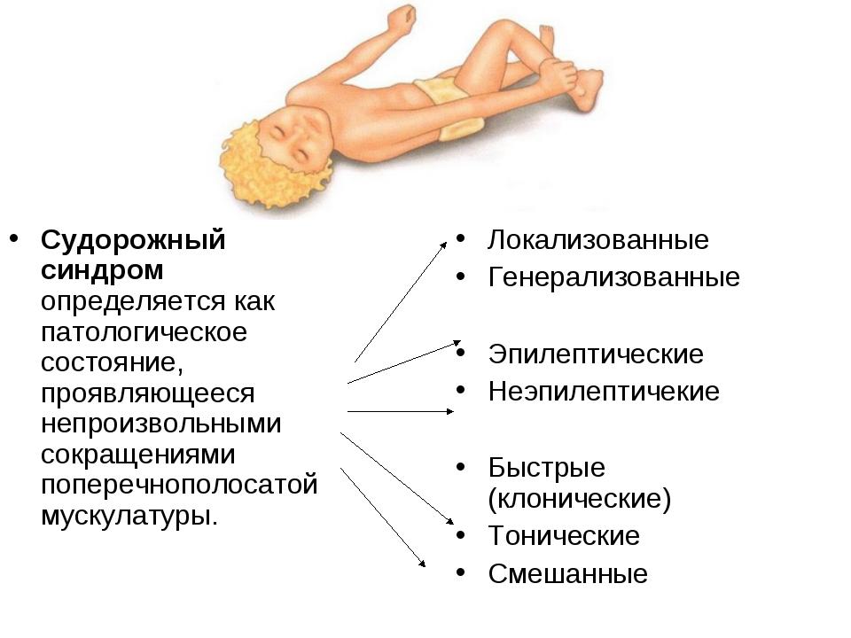 Судорожный синдром определяется как патологическое состояние, проявляющееся н...