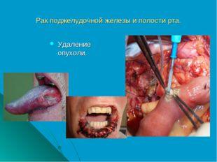 Рак поджелудочной железы и полости рта. Удаление опухоли.