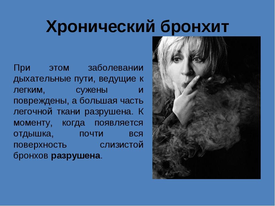 Хронический бронхит При этом заболевании дыхательные пути, ведущие к легким,...