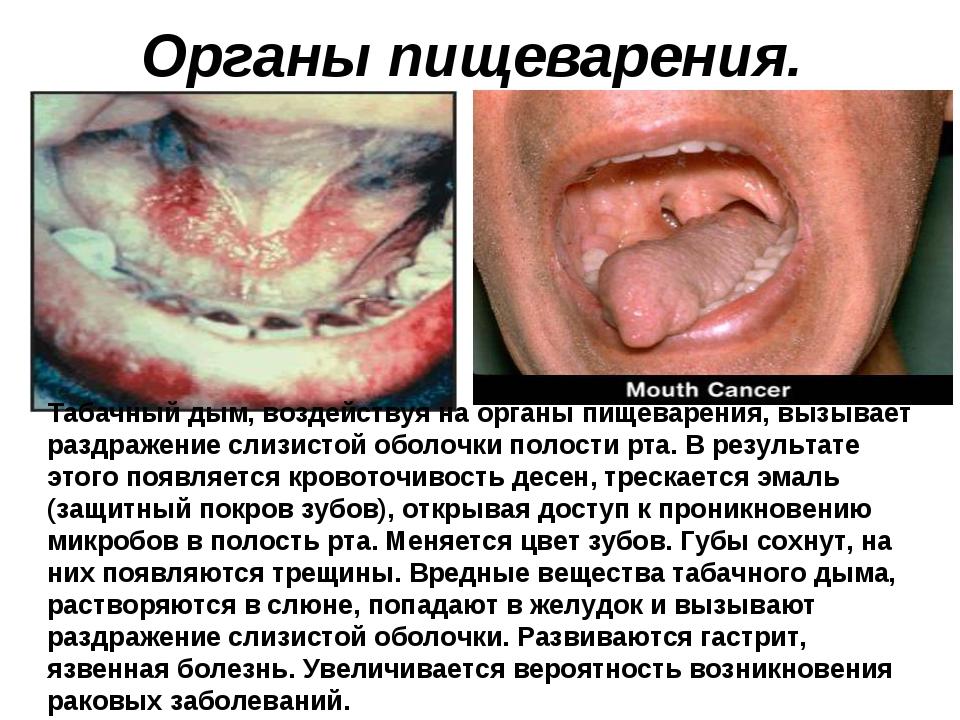 Органы пищеварения. Табачный дым, воздействуя на органы пищеварения, вызывает...
