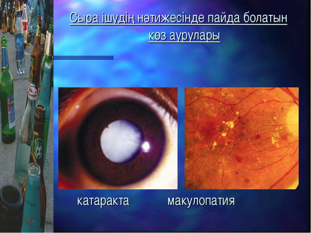 Сыра ішудің нәтижесінде пайда болатын көз аурулары катаракта макулопатия