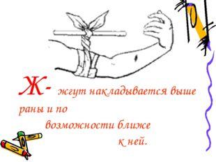 Ж- жгут накладывается выше раны и по возможности ближе к ней.