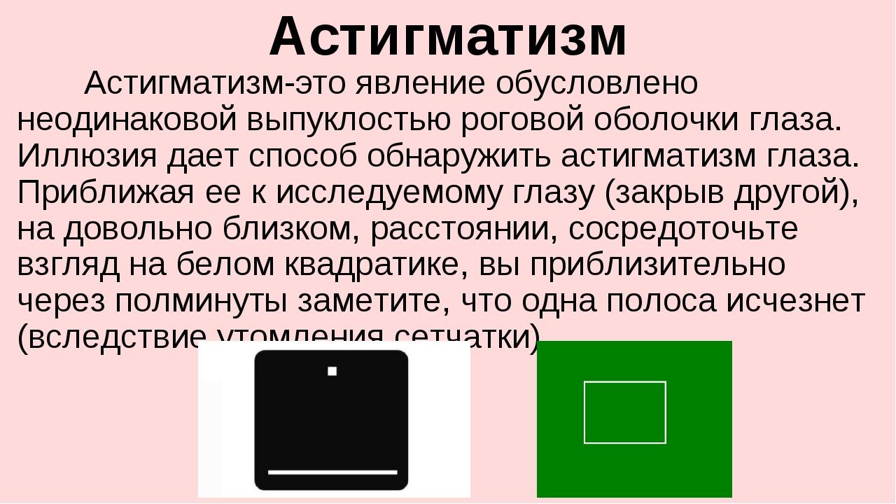 Астигматизм Астигматизм-это явление обусловлено неодинаковой выпуклостью рог...