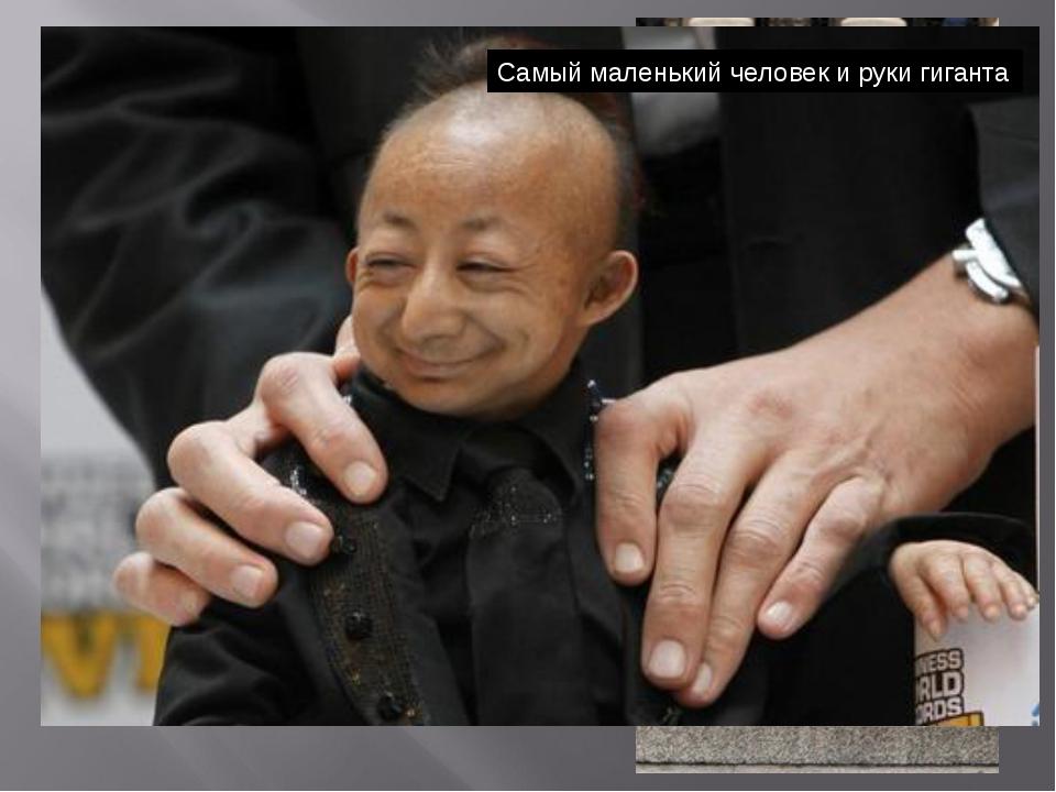 Китаец Хэ Пинпин родился с одной из разновидностей карликовости – его рост с...