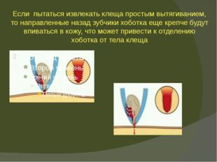 Если пытаться извлекать клеща простым вытягиванием, то направленные назад зуб