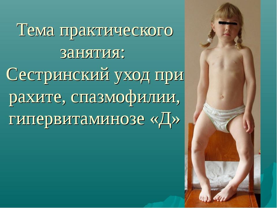Тема практического занятия: Сестринский уход при рахите, спазмофилии, гиперви...