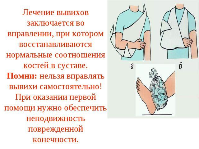 Лечение вывихов заключается во вправлении, при котором восстанавливаются норм...