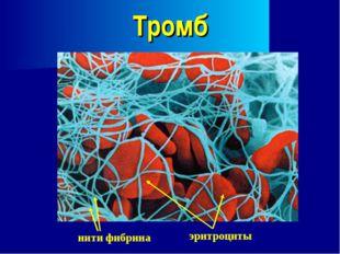 Тромб нити фибрина эритроциты