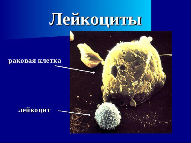 Лейкоциты раковая клетка лейкоцит