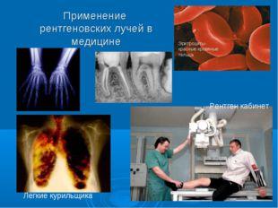 Применение рентгеновских лучей в медицине Легкие курильщика Рентген кабинет Э