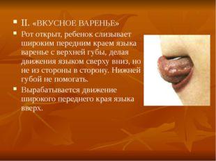II. «ВКУСНОЕ ВАРЕНЬЕ» Рот открыт, ребенок слизывает широким передним краем яз