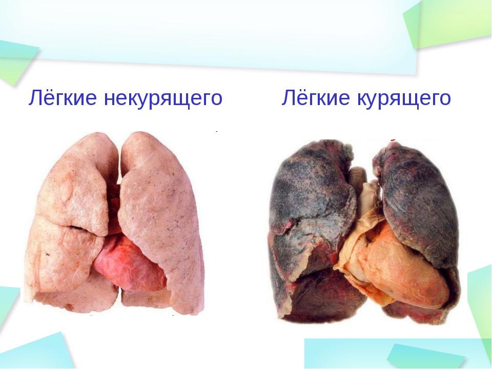 Лёгкие некурящего Лёгкие курящего