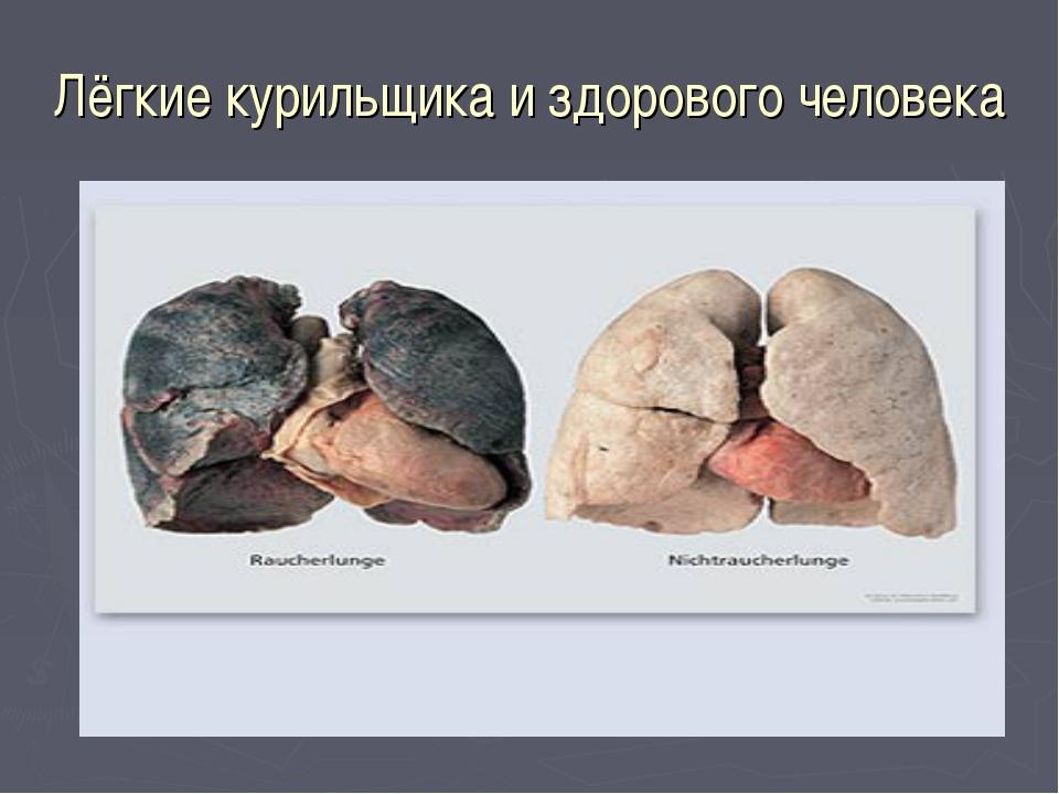 Лёгкие курильщика и здорового человека