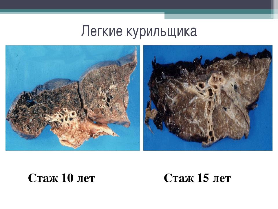 Легкие курильщика Стаж 10 лет Стаж 15 лет
