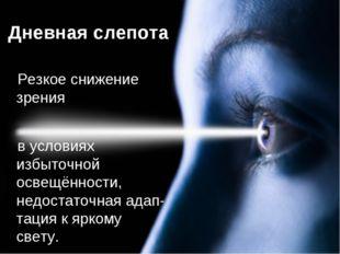 Дневная слепота Резкое снижение зрения в условиях избыточной освещённости, не