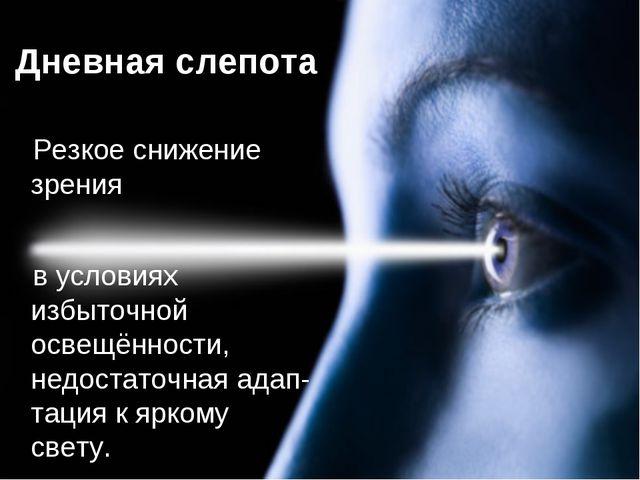 Дневная слепота Резкое снижение зрения в условиях избыточной освещённости, не...