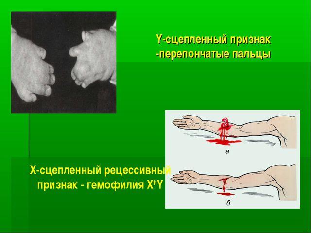 Y-сцепленный признак -перепончатые пальцы Х-сцепленный рецессивный признак -...