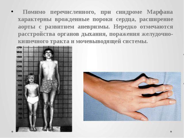 Помимо перечисленного, при синдроме Марфана характерны врожденные пороки сер...