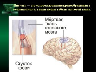 Инсульт — это острое нарушение кровообращения в головном мозге, вызывающее ги
