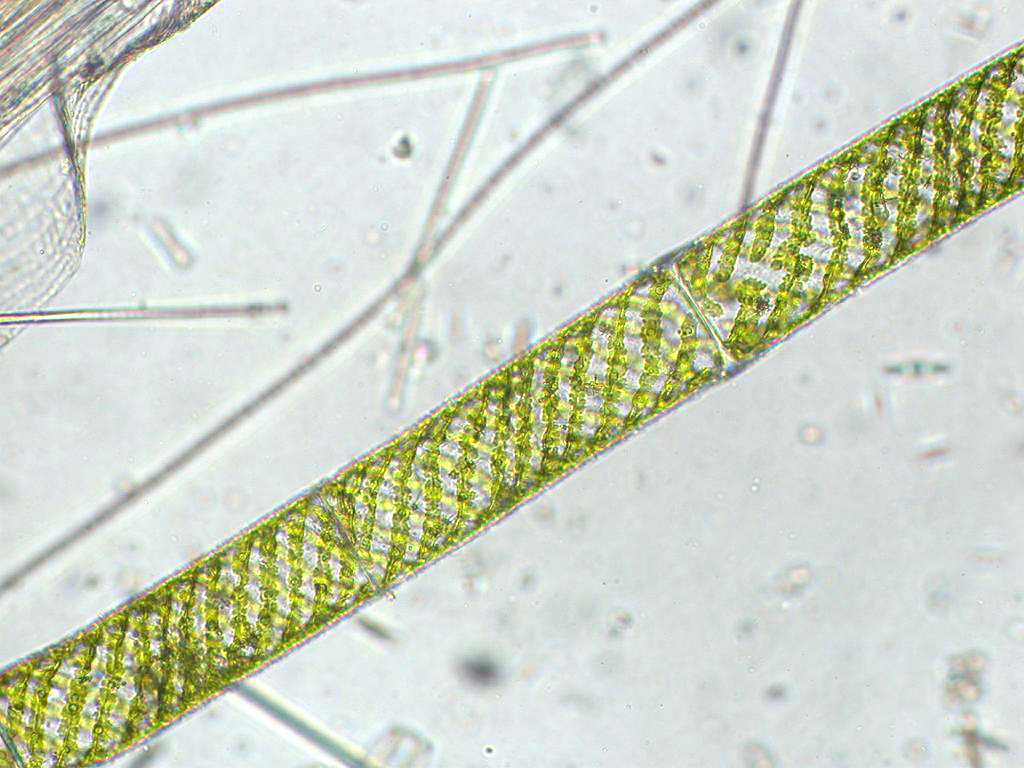 oscillatoria under microscope 40x